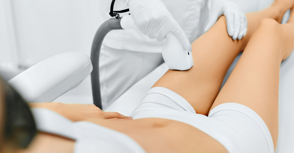 venus laser hair removal treatment Coulsdon